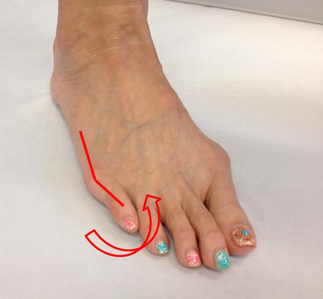 足 の 小指 の 付け根 痛い 内反小趾とは。チェック方法、原因、治し方、改善ストレッチを紹介!